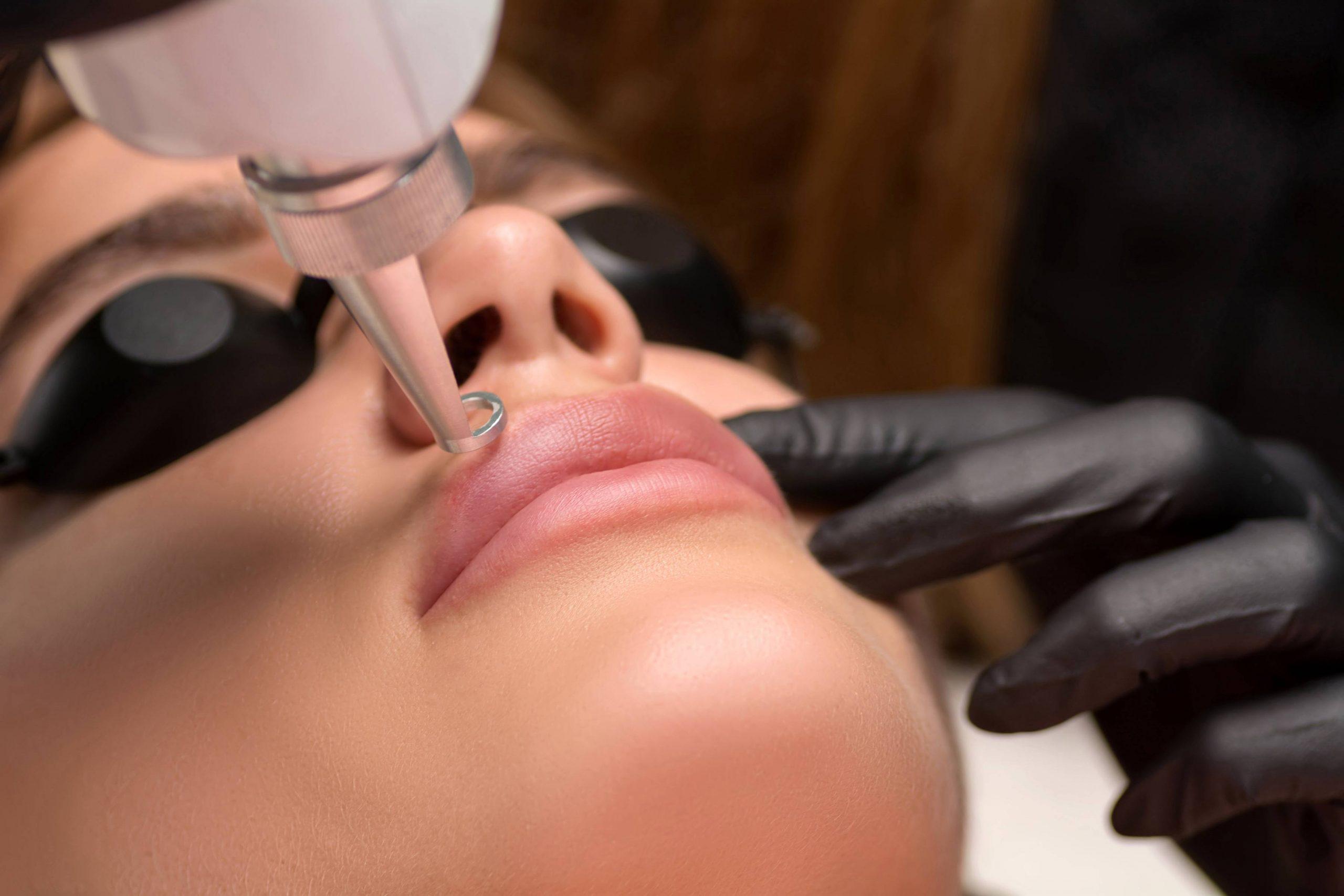 Laser Services | LipLase™ in Burleson, TX