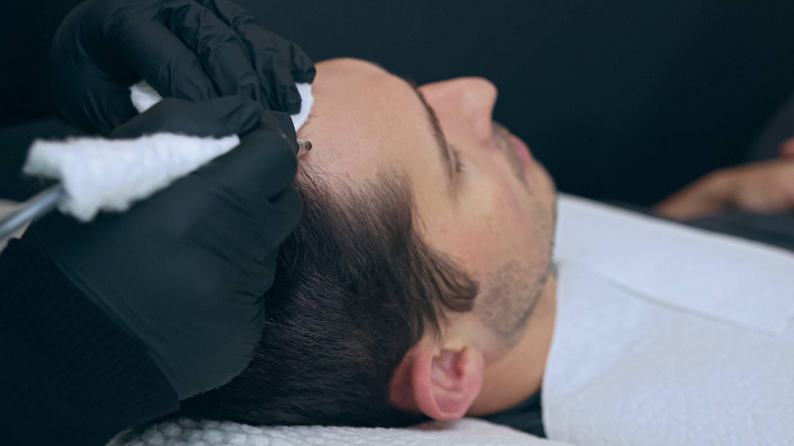 Men's Services Burleson, TX   Keravive Beard and Scalp Treatment Burleson, TX