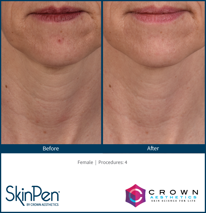 Microneedling Burleson, TX Before & After Image